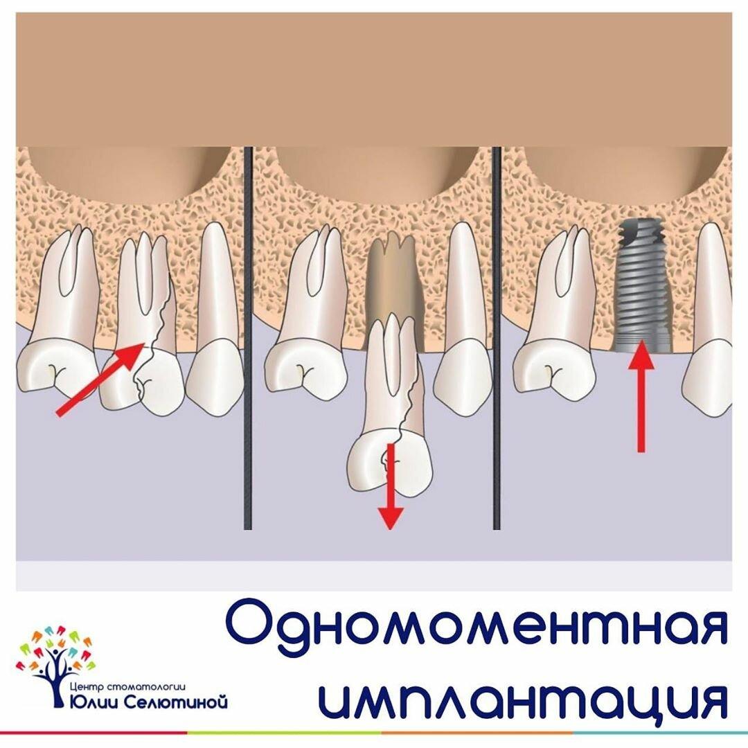 Осколок в десне после удаления зуба: признаки и методы лечения