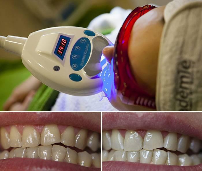 Как сохранить результат на долгие месяцы, а то и годы? что нельзя делать после отбеливания зубов
