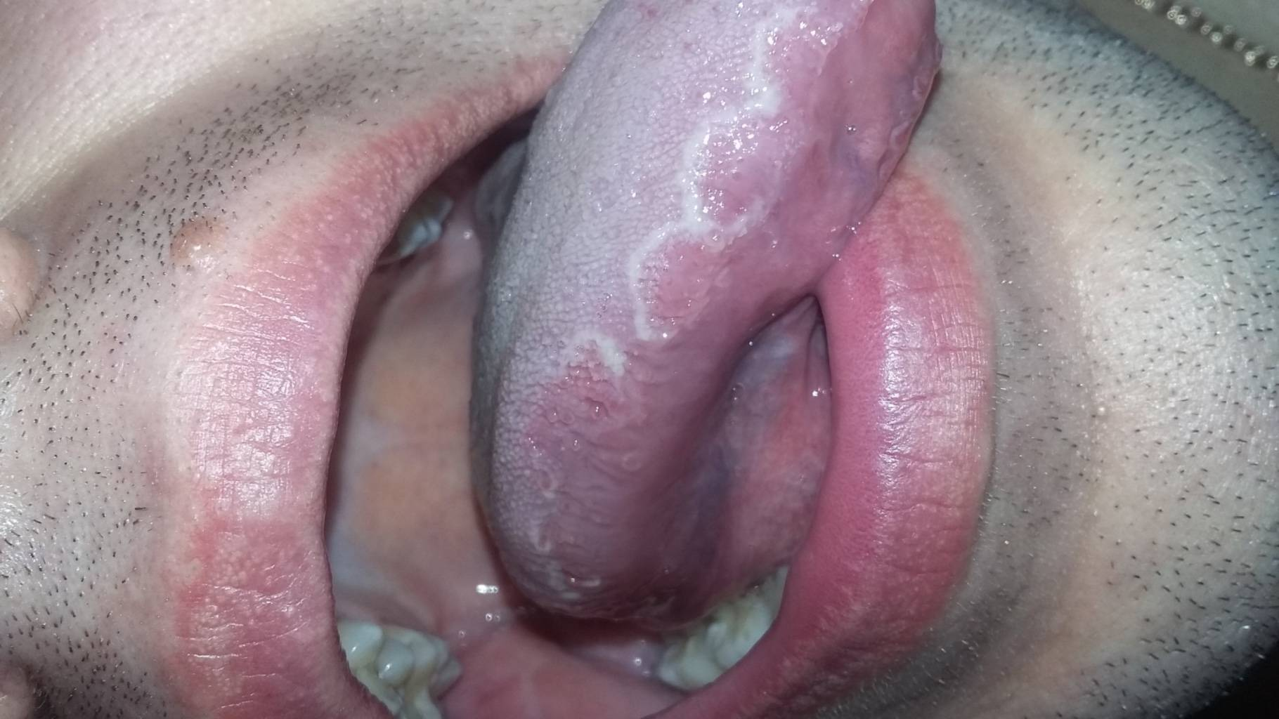 Грибок в уголках губ под названием молочница или кандидоз: симптомы и лечение белого налета у взрослых