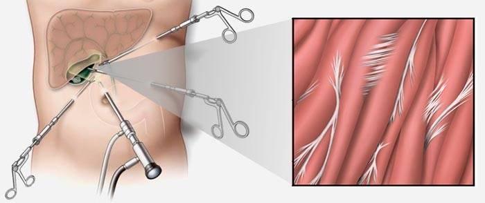 Спайки кишечника и спайки в области малого таза у женщин (спайки матки, маточных труб яичников): ответы на основные вопросы.часть 3