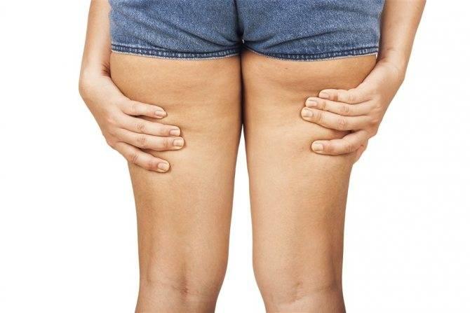 Как избавиться от целлюлита в домашних условиях на попе и ногах