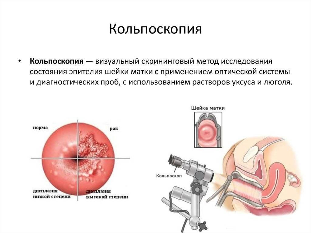 Процедура кольпоскопии во время беременности