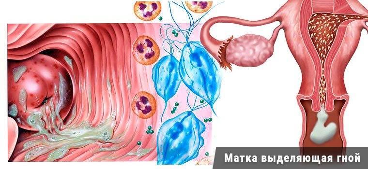 Атрофический вагинит: почему развивается патология и как лечить это состояние