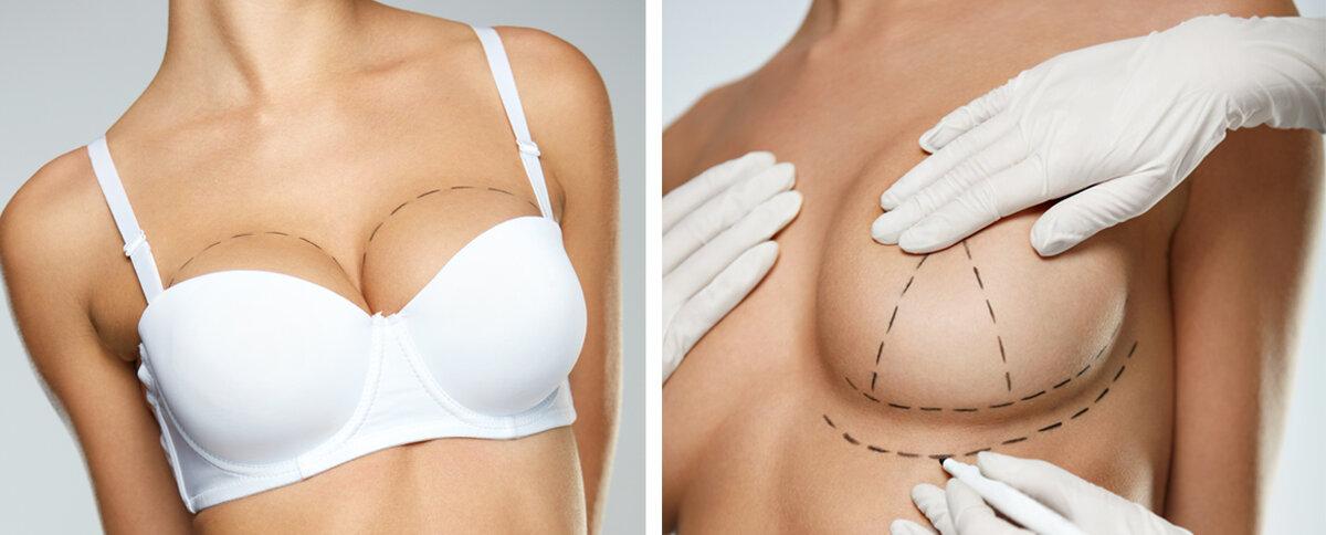 Показания к проведения подтяжки груди, как проводят операцию и стоимость