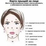 «нет» прыщам на голове в волосах у мужчин и женщин: причины и лечение высыпаний
