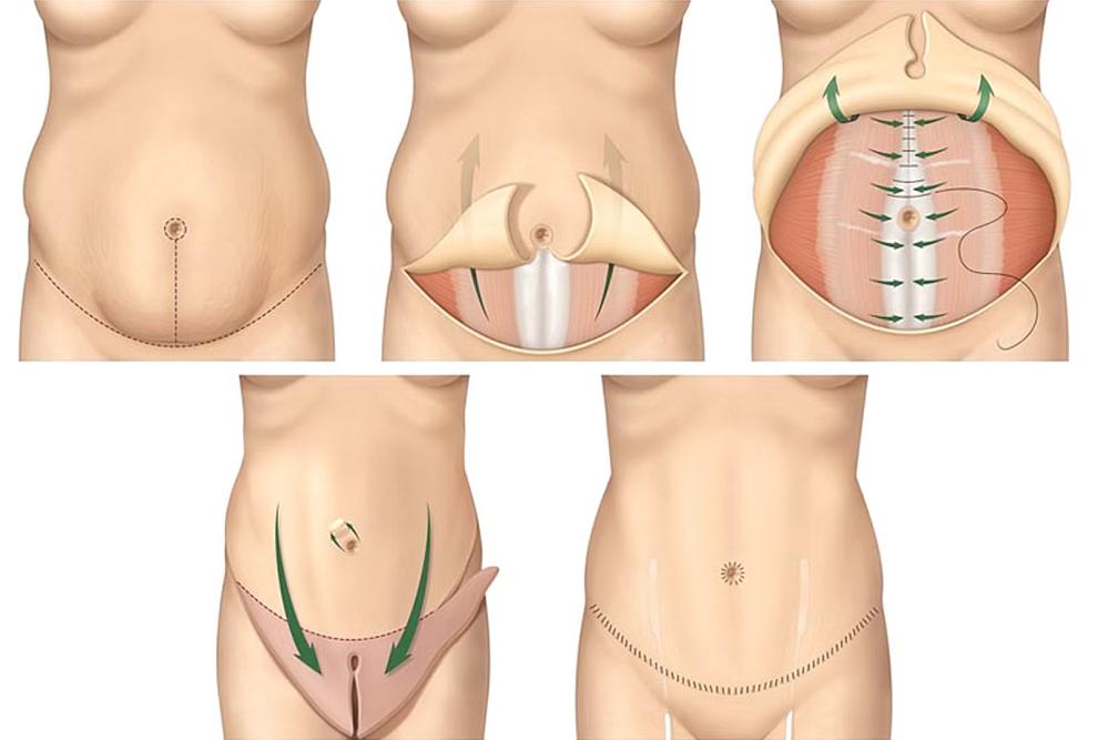 Миниабдоминопластика с ушиванием мышц живота