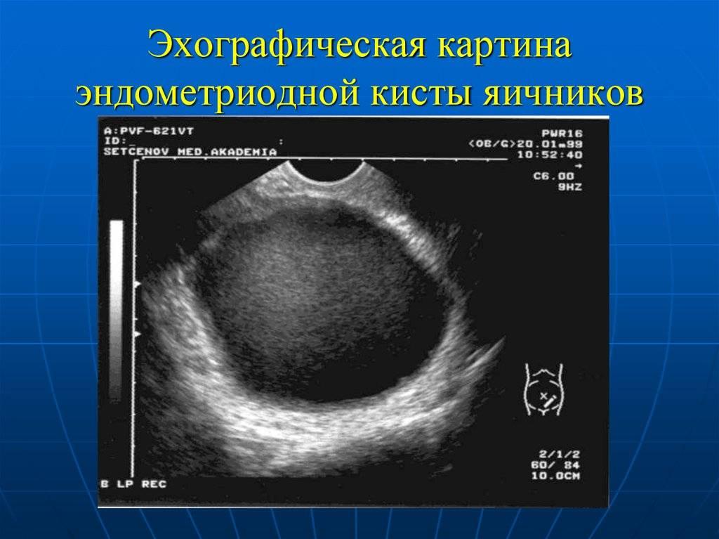 Симптомы и лечение кистомы на яичниках у женщин