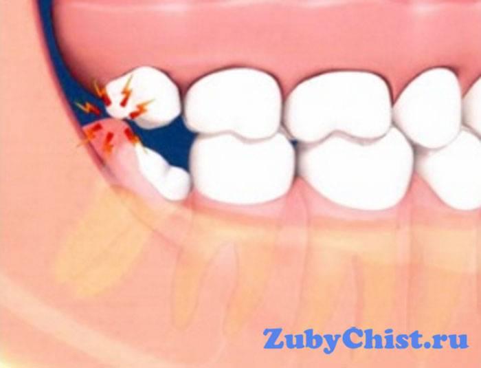 Болит зуб и десна над зубом при нажатии на него: в чем причина возникающей зубной боли?