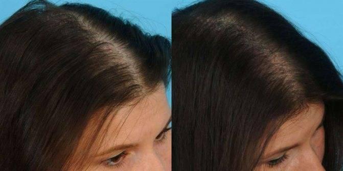 Мезороллер для волос — мезотерапия в домашних условиях