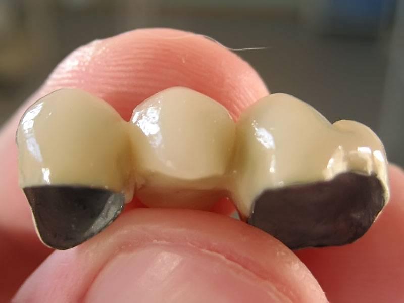 Установка мостовидных зубных протезов: металлокерамический мост и другие виды конструкций с фото до и после