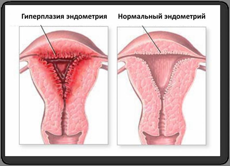 Симптомы и лечение воспаления матки