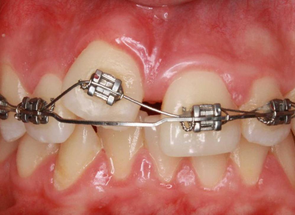 Новости и статьи по метке «ортодонтическое лечение»