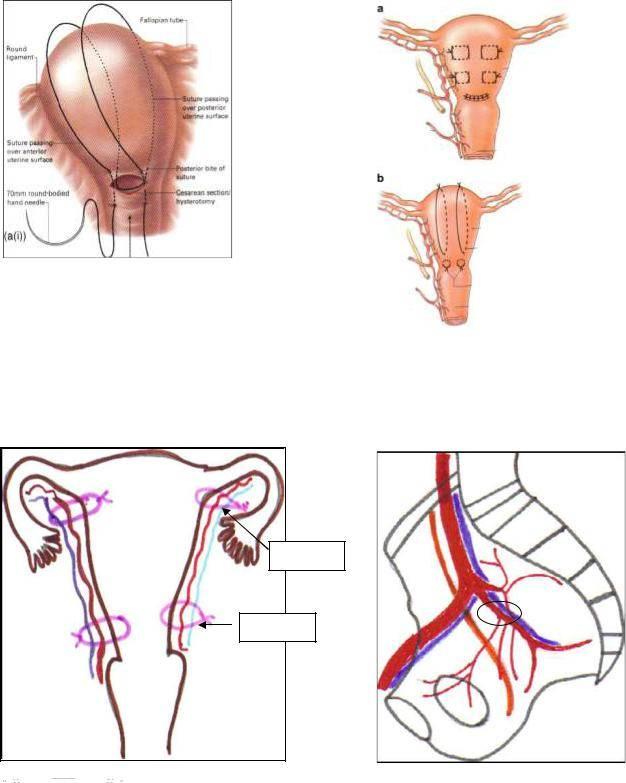 Гипертонус матки при беременности: симптомы и лечение
