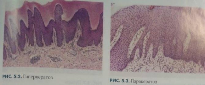 Что такое гиперкератоз шейки матки и как лечить это заболевание?