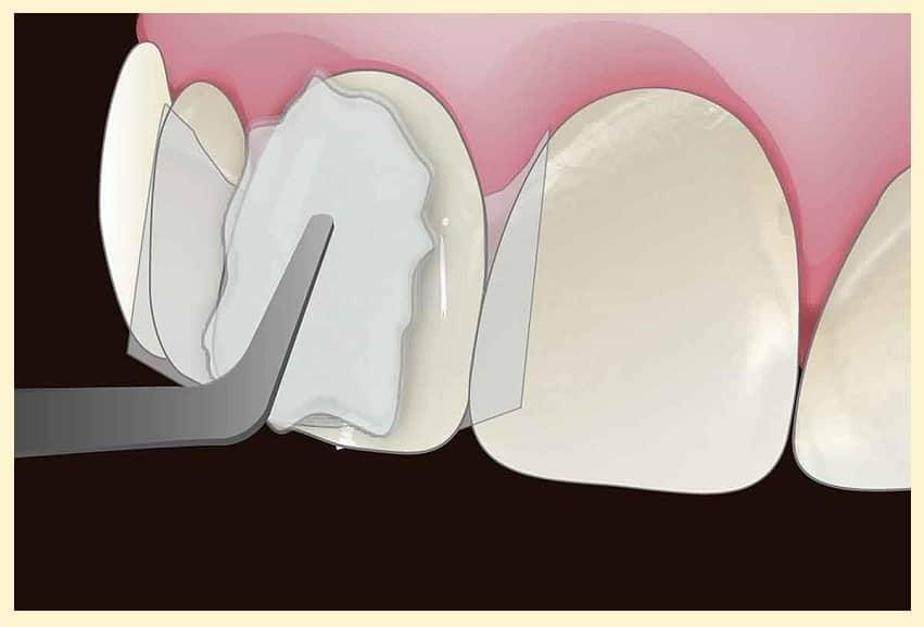 Что делать при выпадении временной пломбы