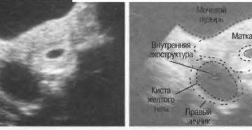 Чем грозит киста желтого тела при беременности