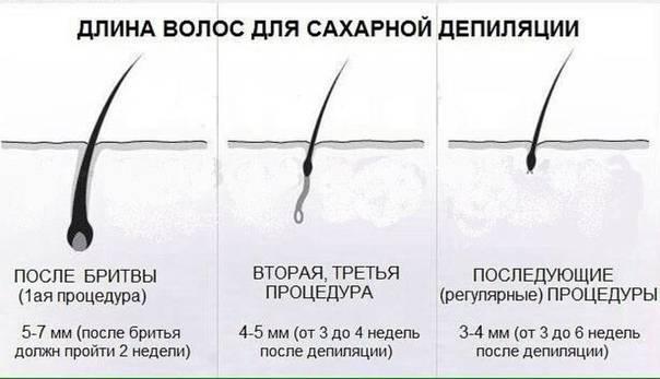 Какой длины должны быть волосы для шугаринга: сколько отращивать волосы перед сахарной депиляцией