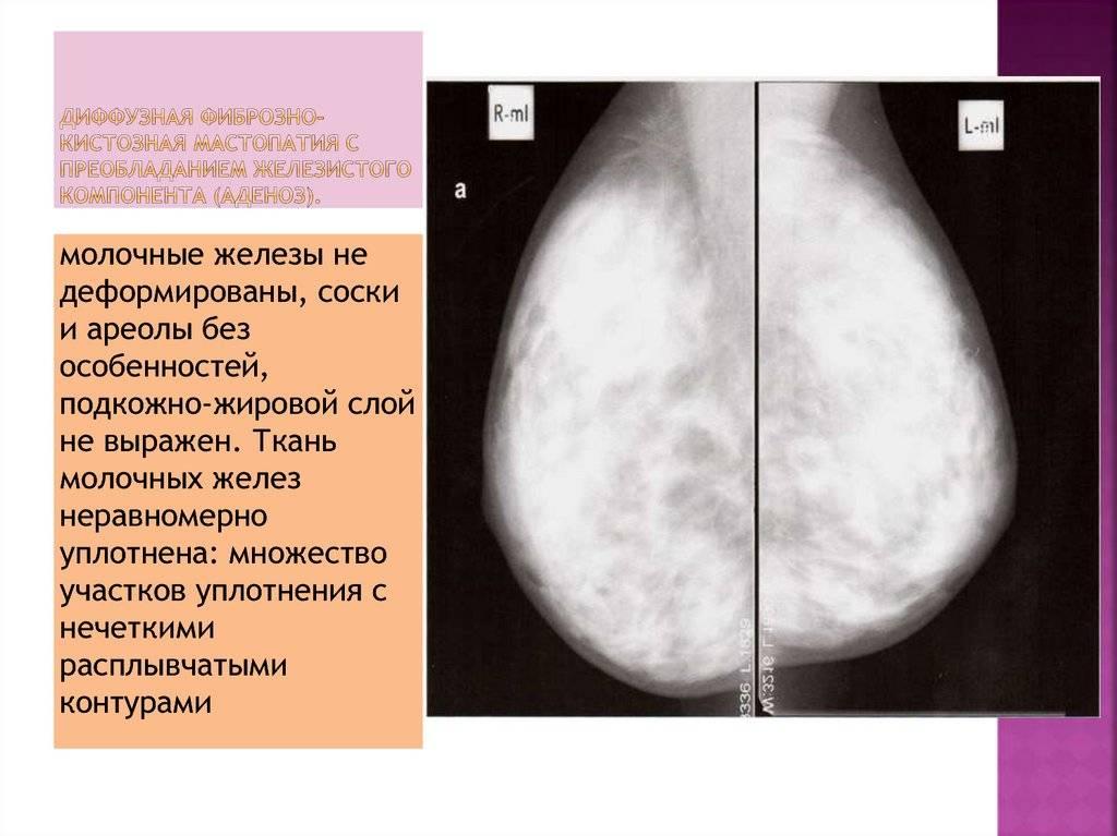 Фиброзная мастопатия — болезнь xxi века
