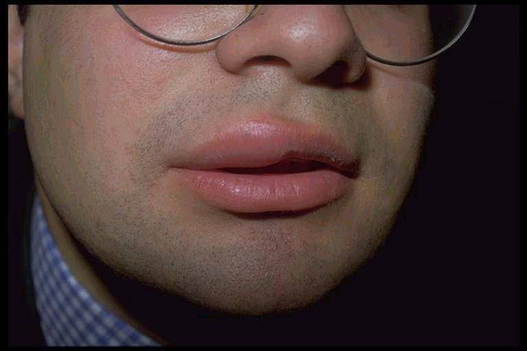 По каким причинам опухли губы на лице