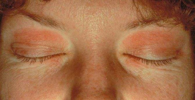 Почему шелушатся веки глаз у мужчин. шелушение век