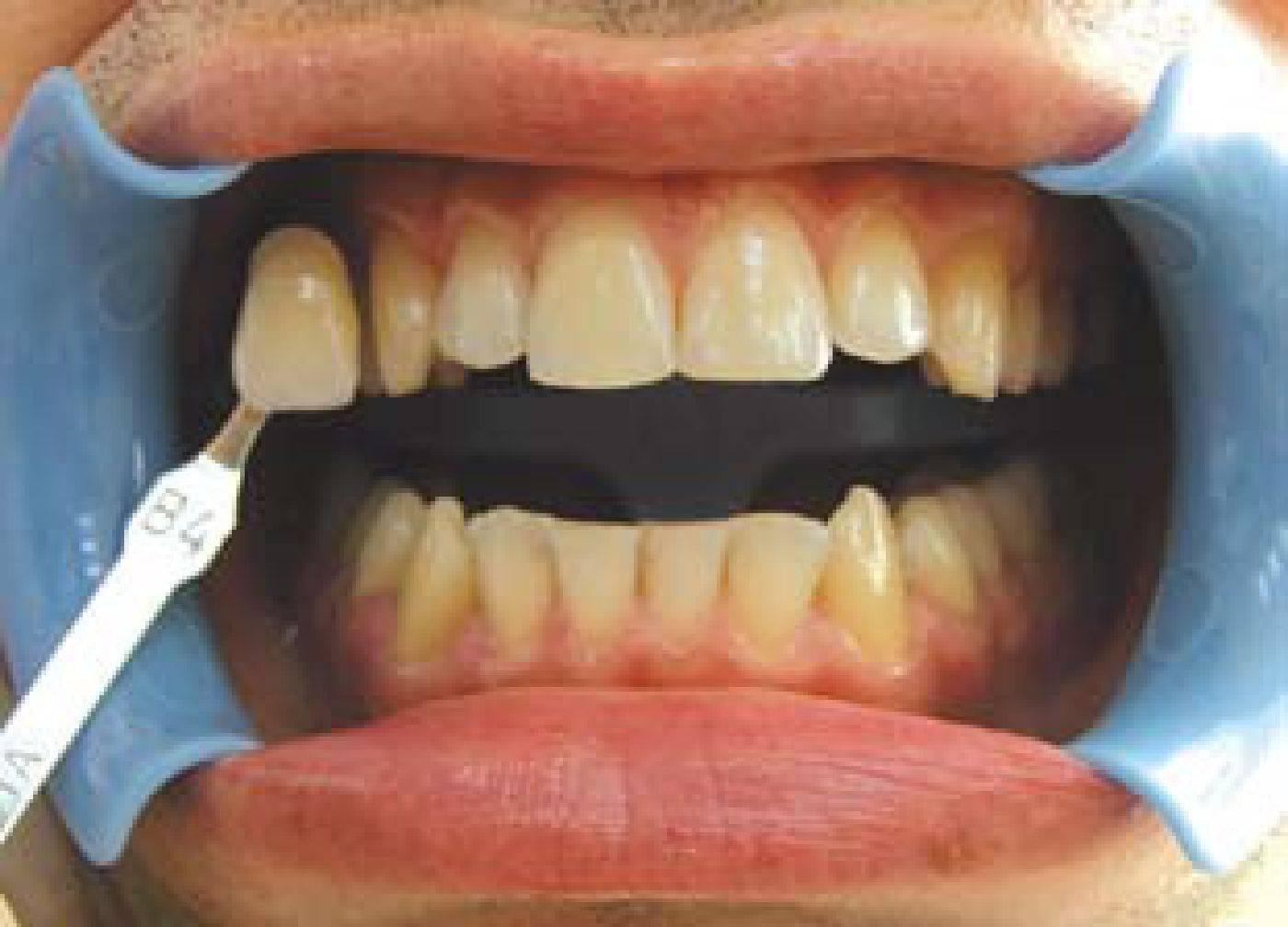 Как отбелить зубы после курения