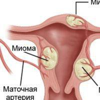 Причины развития и симптомы миомы матки и кисты яичников