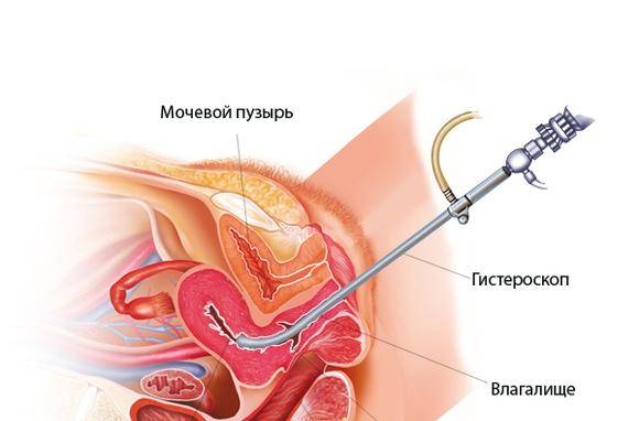 Как возникает и чем лечится эндометрит после кесарева