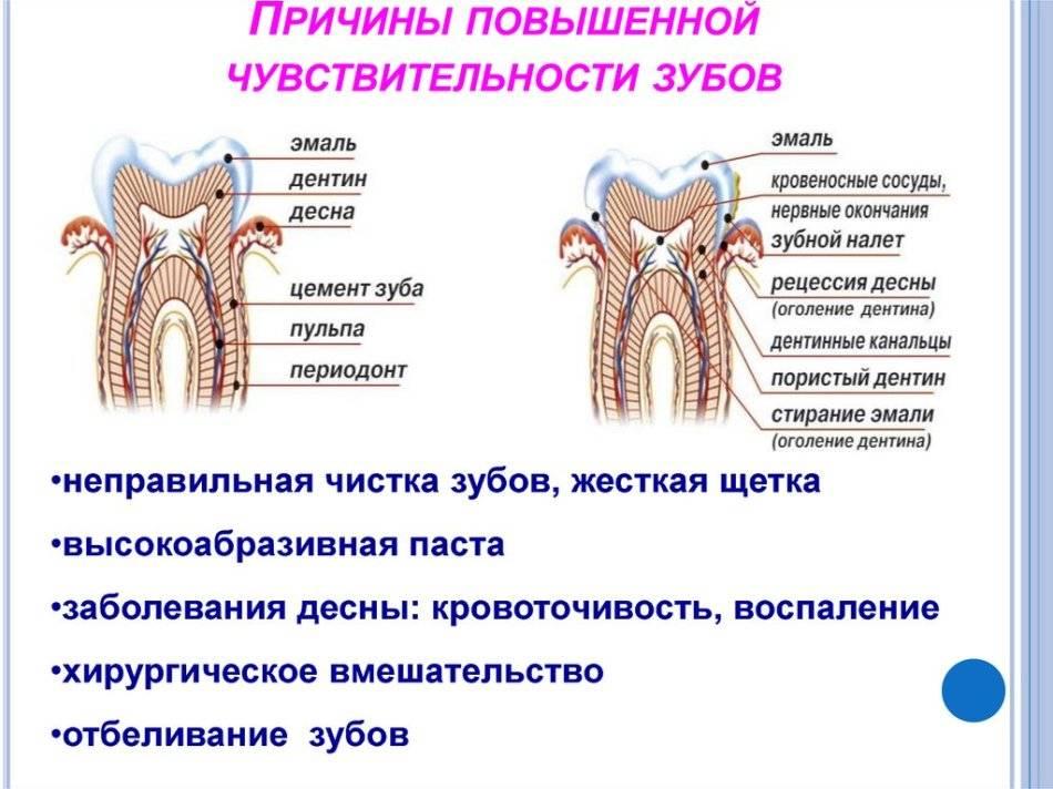 Как лечить чувствительность зубов во время беременности
