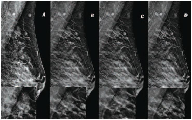 Мелкие обызвествления в тканях молочных желез или микрокальцинаты