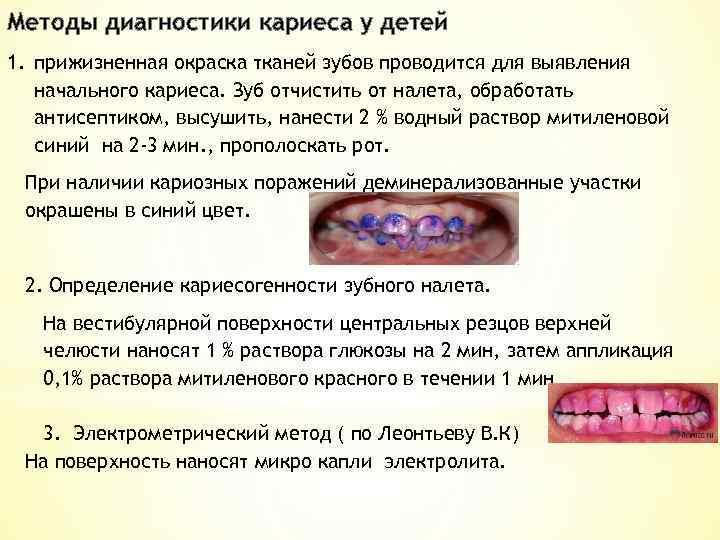 Диагностика заболеваний зубов