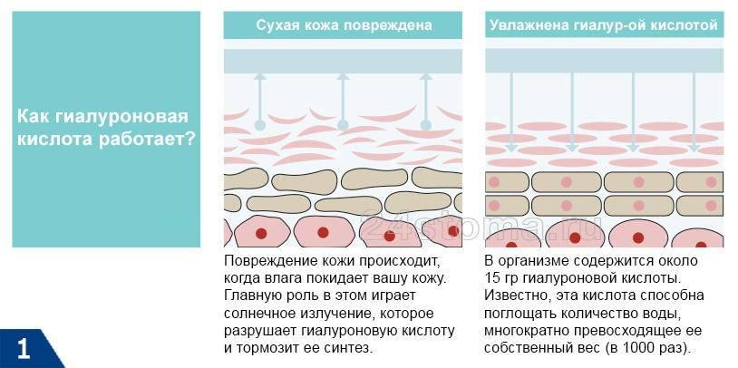 Последствия уколов гиалуроновой кислоты
