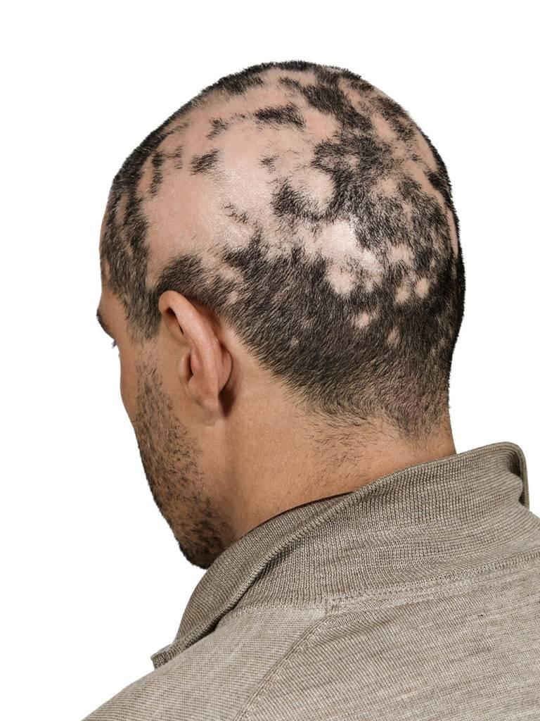 Очаговая алопеция — лечение и выявление причин облысения