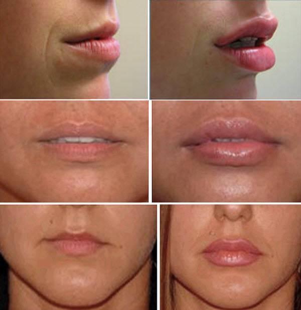 Какой филлер лучше использовать для увеличения губ и как проходит процедура?