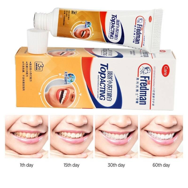 Чем полезна и вредна чистка зубов содой