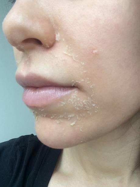 Сухая кожа губ: что делать