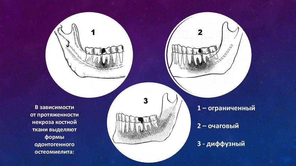 Симптомы и лечение остеомиелита челюсти
