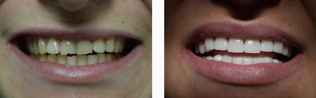 Можно ли поставить виниры на кривые зубы