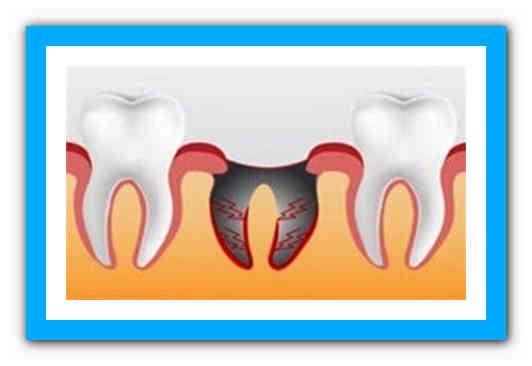 Образование сгустка крови после удаления зуба: осложнения и рекомендации
