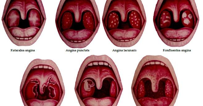 Рак миндалин – фото, начальная стадия и последствия