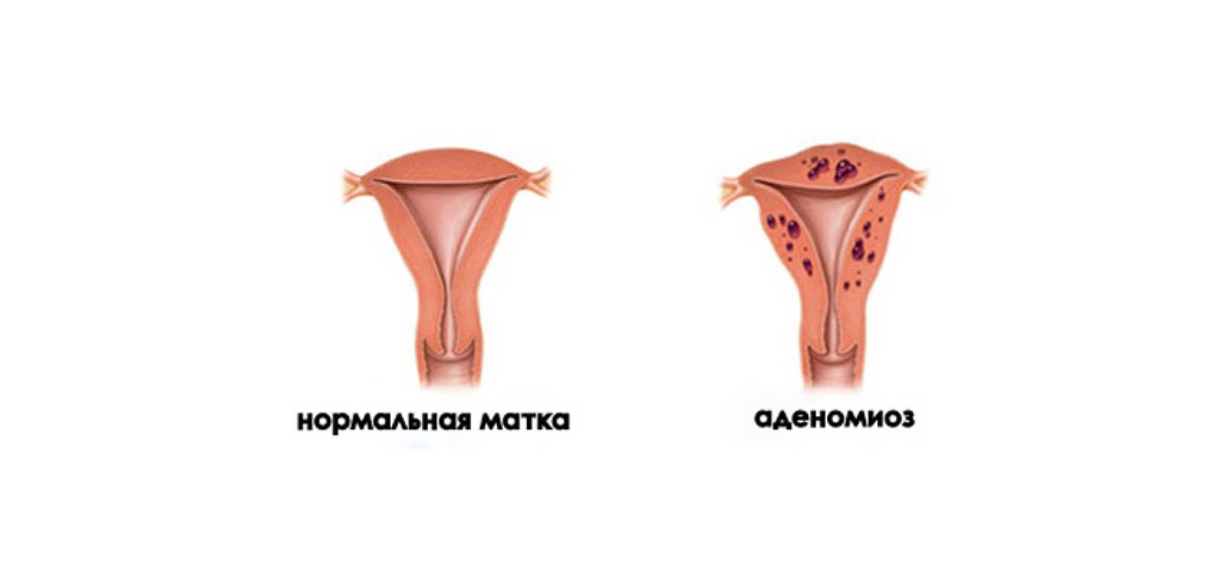 Эндометриоз – опасное гормональное нарушение