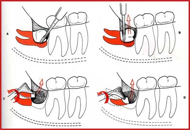 Когда и зачем надо удалять зубы мудрости