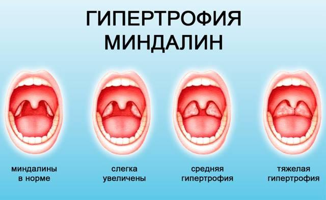 Опух язычок в горле. что делать после рвоты, ангины, удаления миндалин, алкоголя, причины