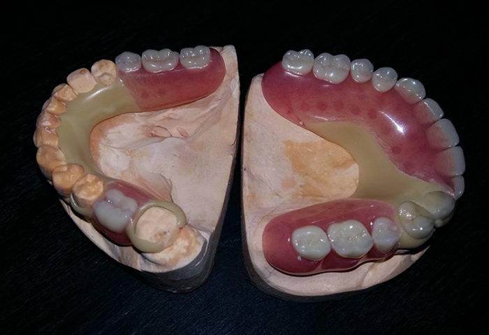 Съёмный ацеталовый протез