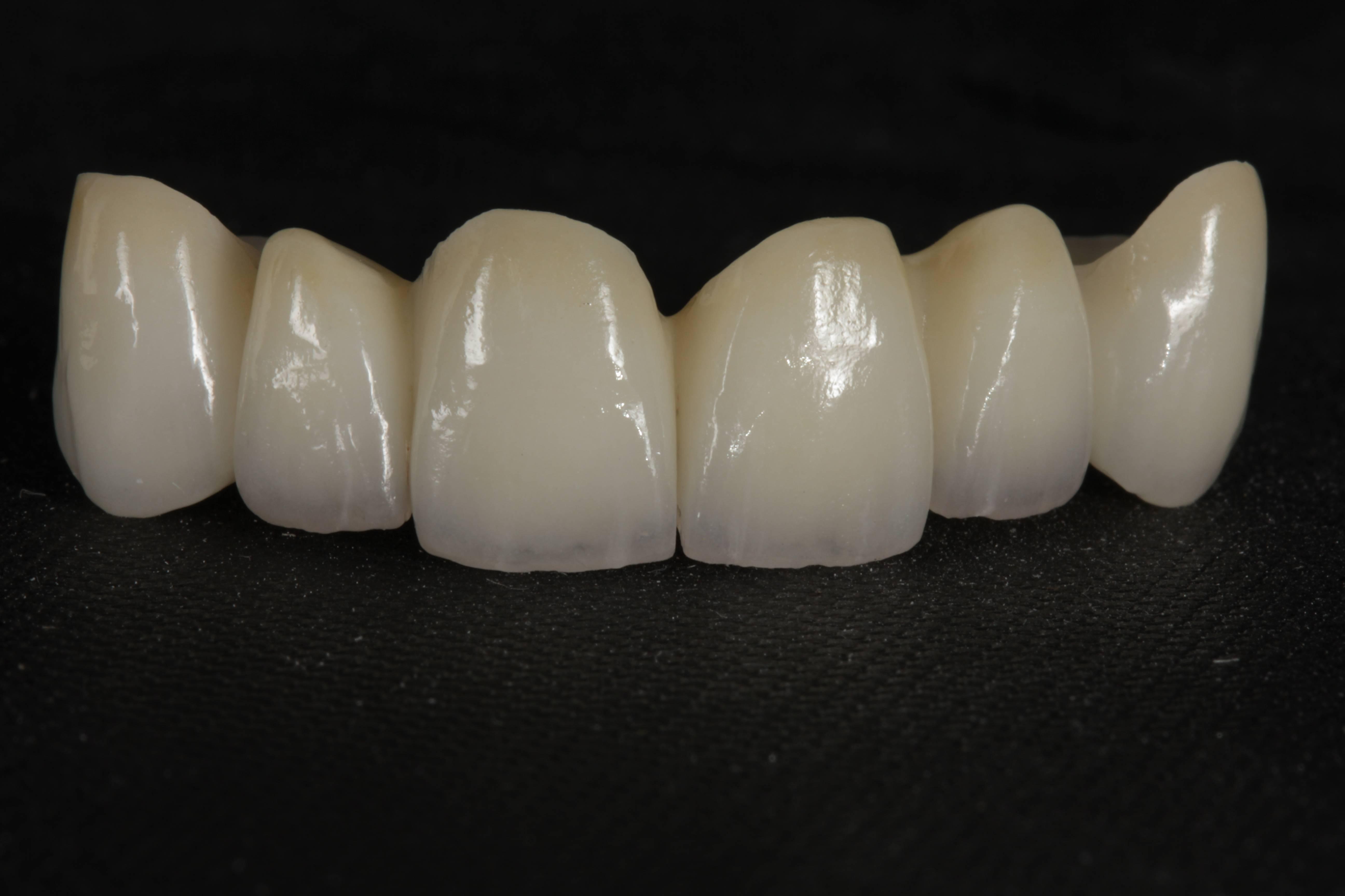 Коронки на передние зубы: какие лучше