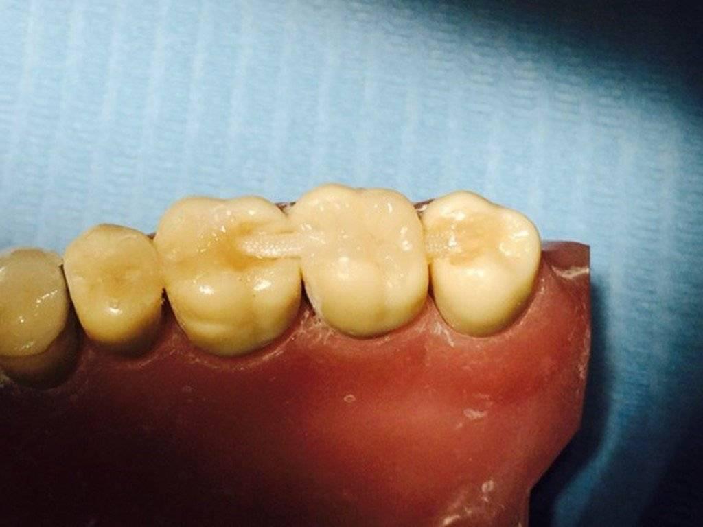 Шинирование зубов: что это такое