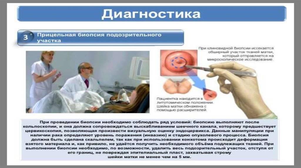 Преинвазивный рак шейки матки