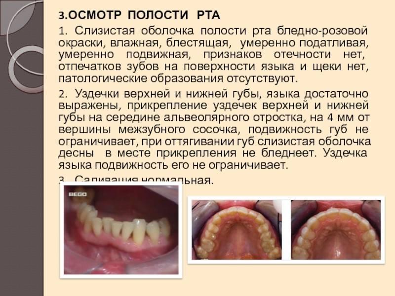 Изменения слизистой оболочки полости рта при некоторых системных заболеваниях