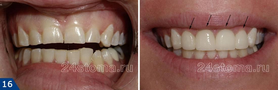 Протезирование зубов с исправлением неправильного прикуса