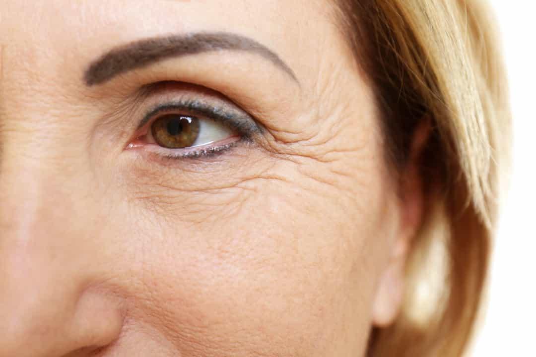 Эффективные способы избавления от морщин вокруг губ