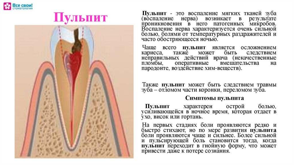 Периодонтит — симптомы, причины, лечение, профилактика
